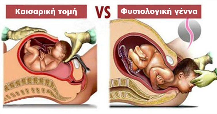 Φυσιολογικός τοκετός vs Καισαρική